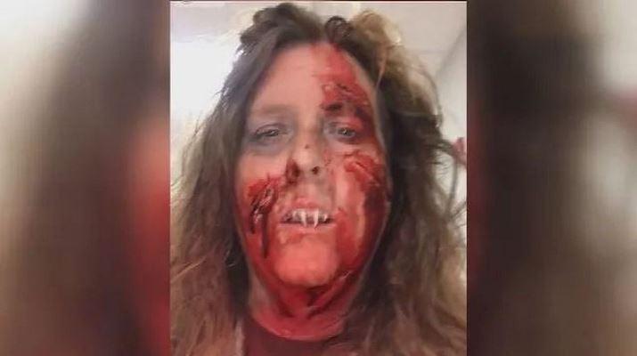 Хэллоуин обернулся кошмаром, когда женщина не смогла самостоятельно снять костюмированные клыки с настоящих зубов
