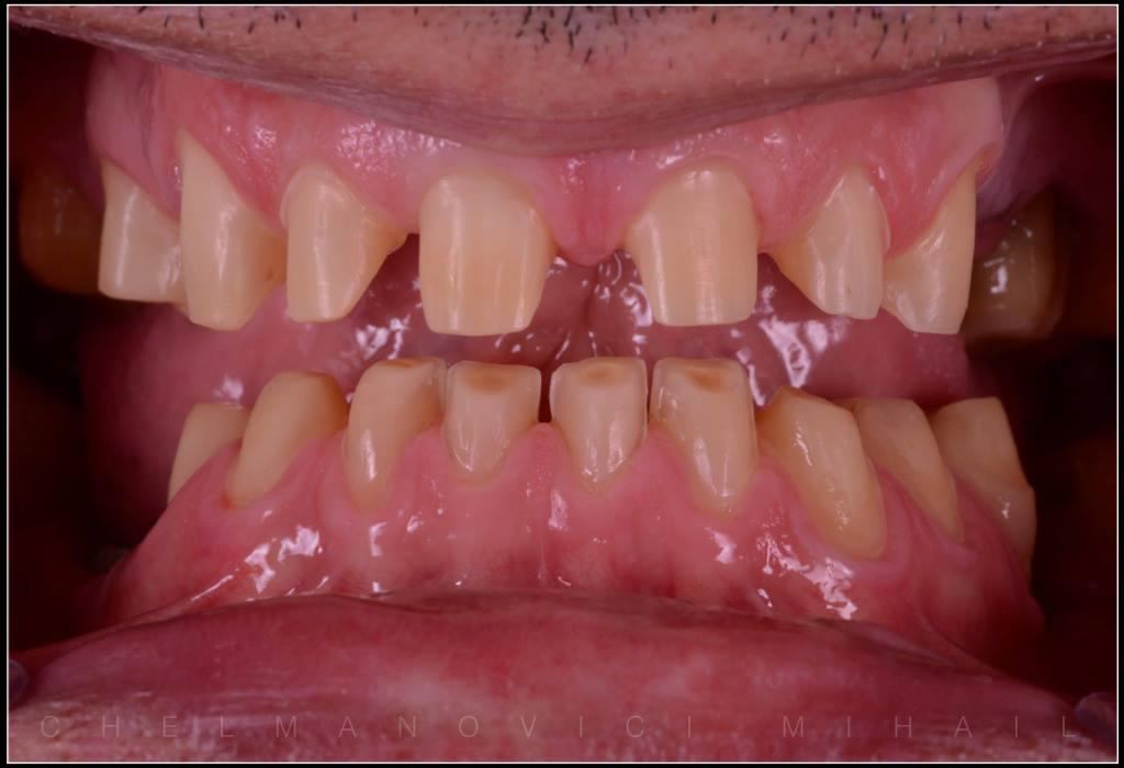 картинка нет зуба нет проблемным зонам столь прекрасен, что
