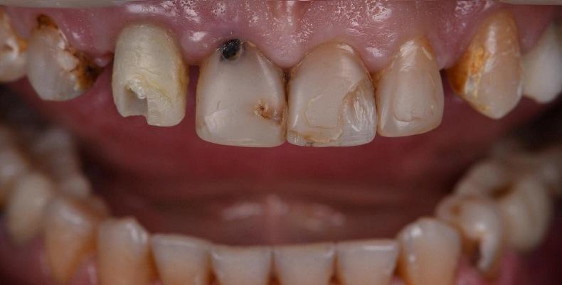 Прямая композитная реставрация семи передних верхних зубов
