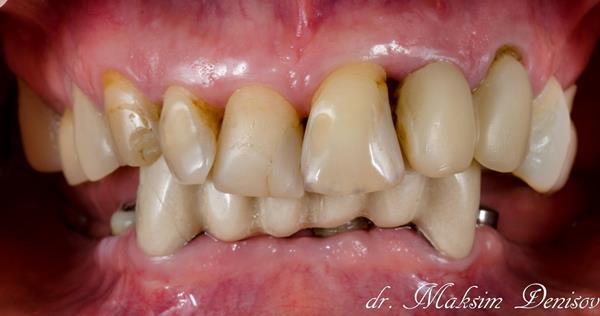 Протезирование нижней челюсти на имплантатах и замена временных коронок на постоянные на верхней челюсти