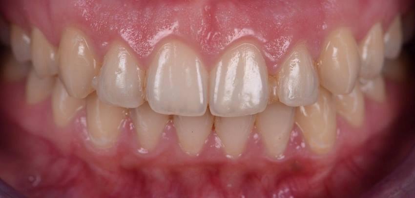 Непрямая реставрация улыбки шестью керамическими винирами