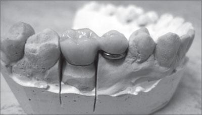 Клинические наблюдения на титановой опоре Карапетяна