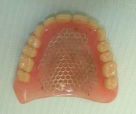 полный съемный зубной протез верхней челюсти