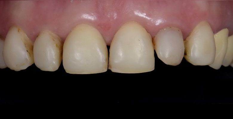 Восстановление 6 фронтальных зубов верхней челюсти одновременно