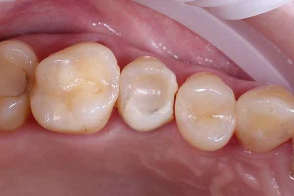 Цифровая стоматология у кресла пациента - идеальное решение для одиночных реставраций