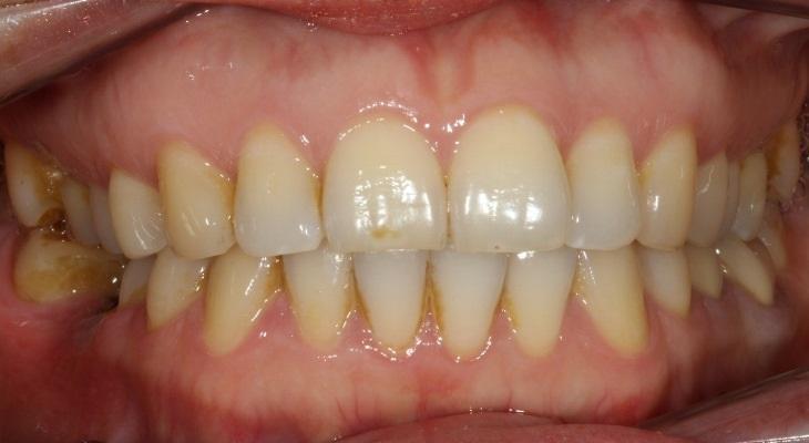 Исправление положения зуба в зубной дуге и восстановление межзубного контакта с использованием керамической вкладки