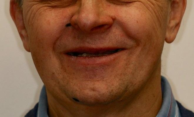 Реабилитация пациента по концепции all-on-4 на верхней челюсти