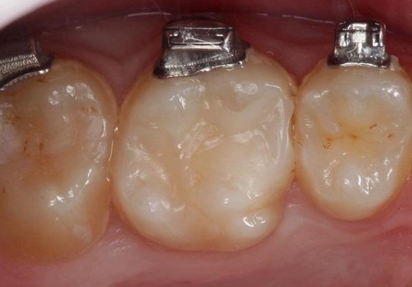 Прямая эстетическая реставрация зуба 2.7
