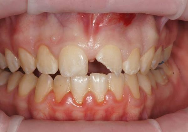 Немедленная имплантация в позиции зуба 21 с методикой IDR (корневого щита)