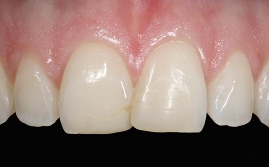 Восстановление утраченных тканей в стоматологии