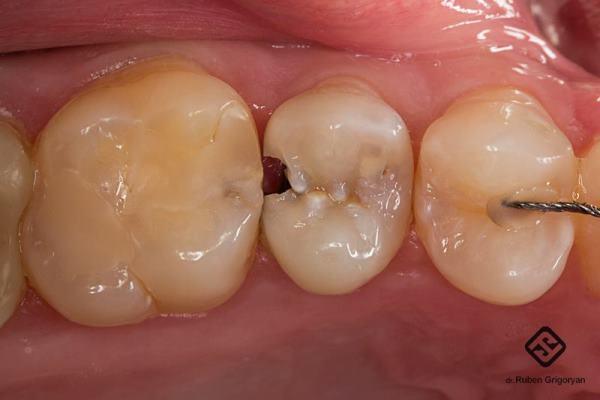Восстановление обширного дефекта коронковой части 2.5. зуба прямым методом после эндодонтического лечения
