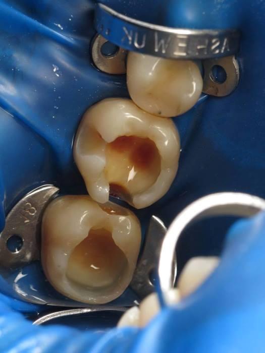 Прямая реставрация жевательных зубов