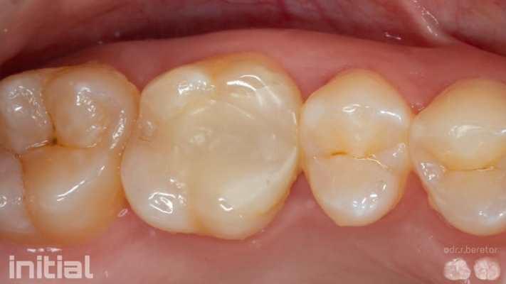Прямая реставрация 16 зуба