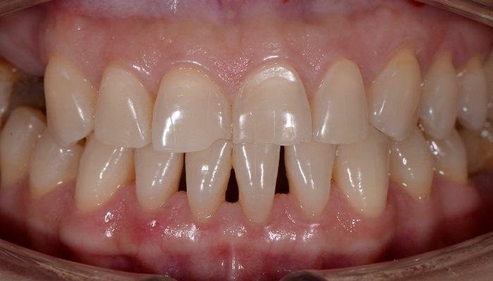 Тотальная прямая реконструкция зубов верхней и нижней челюсти