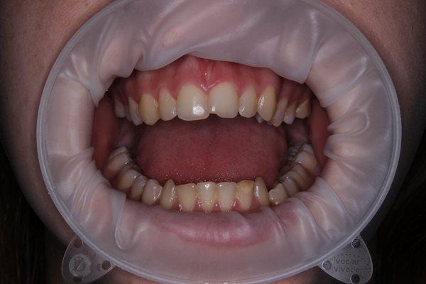 Ортодонтическое лечение пациентки с вправимым вывихом ВНЧС