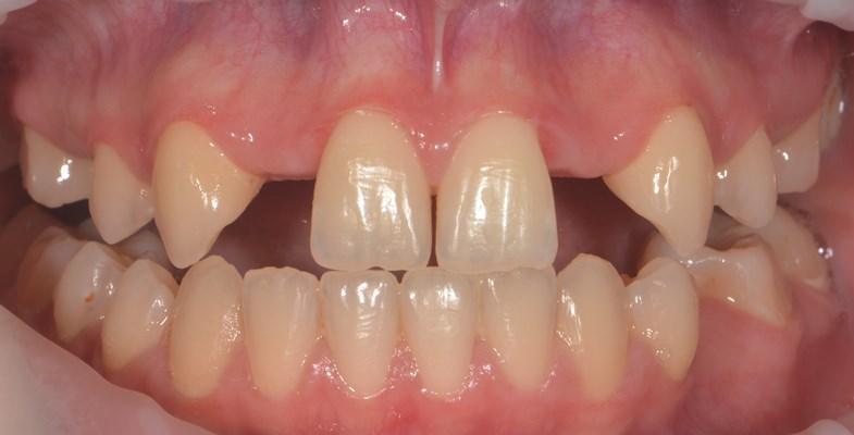 Установка имплантатов при первичной адентии фронтальных и боковых зубов