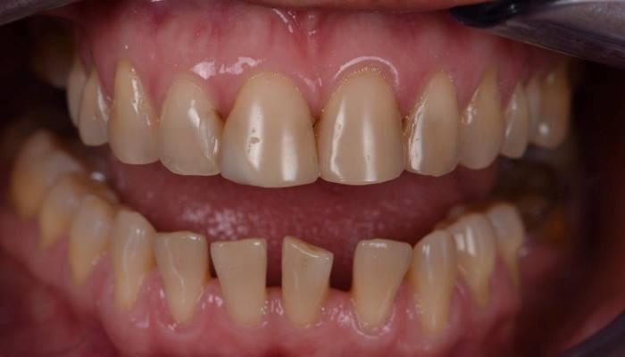 Подробный протокол прямой реставрации 6 передних зубов нижней челюсти