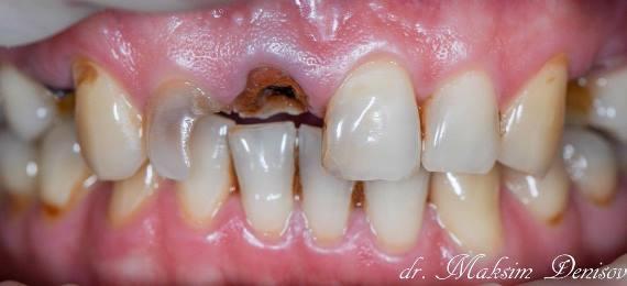 Комплексная реабилитация на верхней челюсти