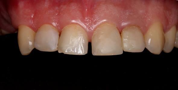 Закрытие диастемы и изменение формы зубов с помощью адгезивных керамических реставраций