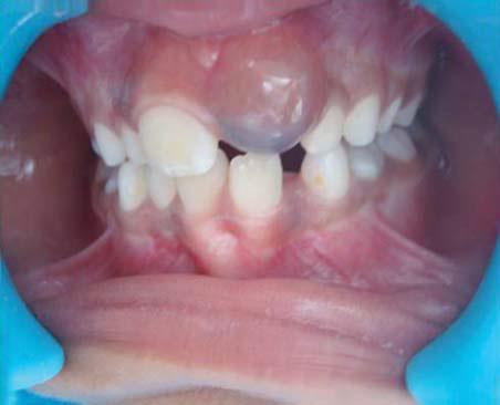Киста молочного зуба у детей (прорезывания): что такое, симптомы, причины возникновения, лечение, профилактика - Мир здоровья