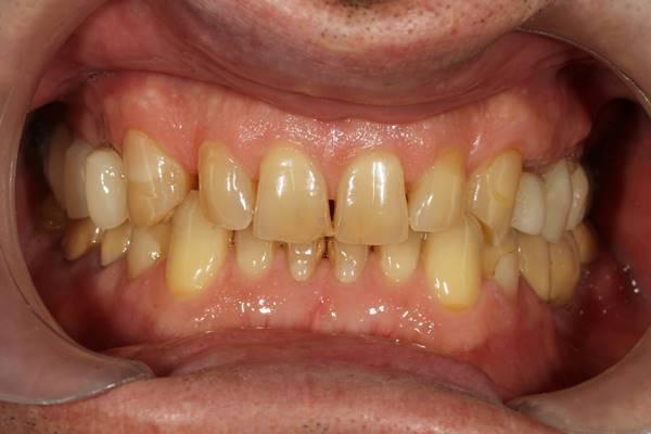 Восстановление функции и эстетики керамическими и металлокерамическими коронками с опорой на зубы и имплантаты