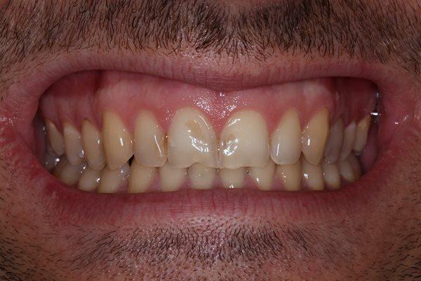 Эстетическая реабилитация фронтальных зубов при помощи керамических реставраций