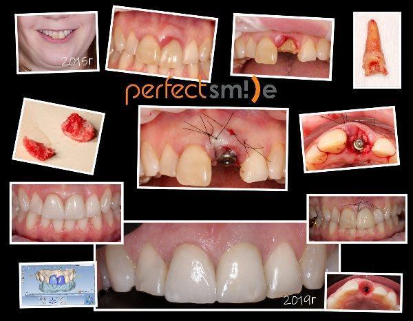 Случай немедленной имплантации и достижение гармоничной улыбки минимальными изменениями