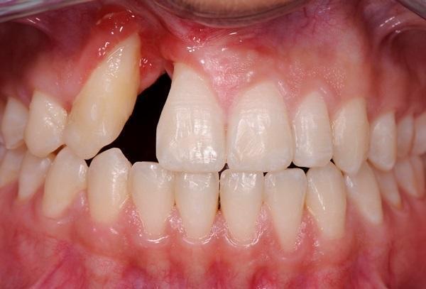 Трехмерная реконструкция комплексного ятрогенного дефекта посредством ортодонтического вмешательства и минимальной костной аугментации