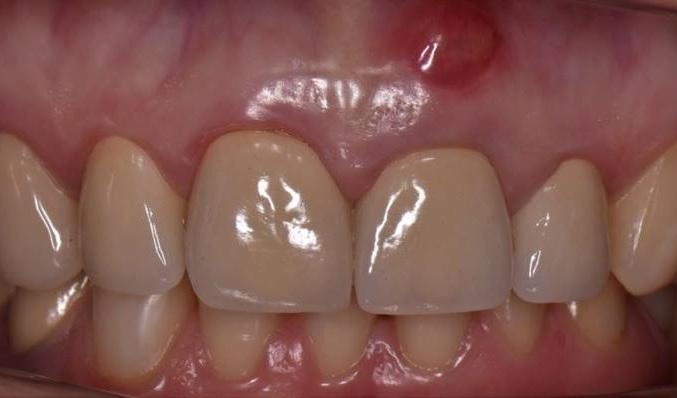 Немедленная денто-альвеолярная реставрация с использованием аутогенных материалов