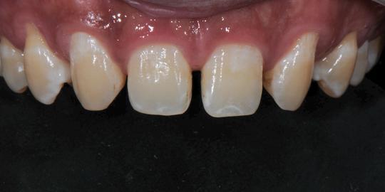 Цифровой дизайн улыбки и денто-лицевой анализ: как восстановить эстетику, сохранив структуру зубов?