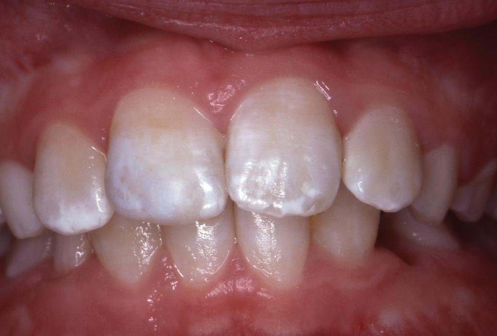 отчет зубного техника на высшую категорию