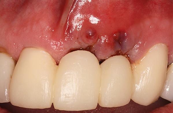Сравнение двух методик при диагностике периимплантита после протезирования