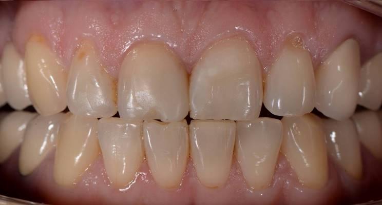 Тотальная реконструкция зубов верхней и нижней челюсти