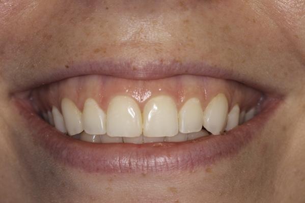 Репозиция уровня губы при лечении десневой улыбки: новый подход