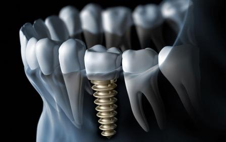Найден способ улучшить фиксацию титанового имплантата в кости