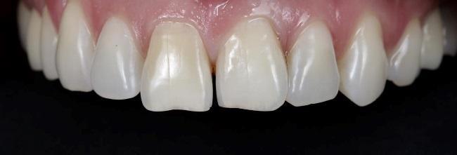 Малоинвазивная реставрация фронтальных зубов