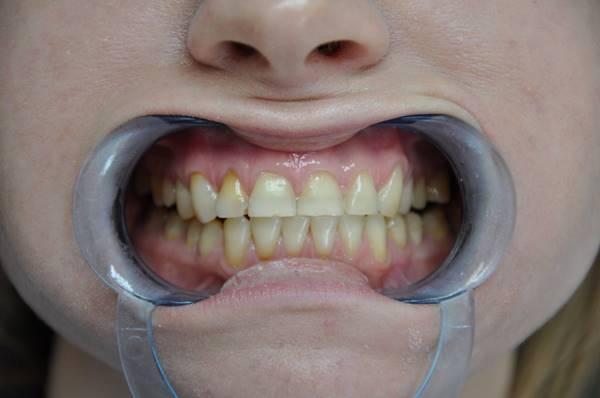 Клинический случай комплексного отбеливания зубов