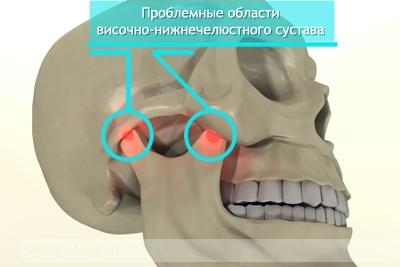 Боль в районе височно-нижнечелюсного сустава болит колено тяжело ходить как будто шипы внутри