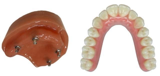 Условно съемный протез: бюджетная альтернатива тотальной имплантации при полном отсутствии зубов