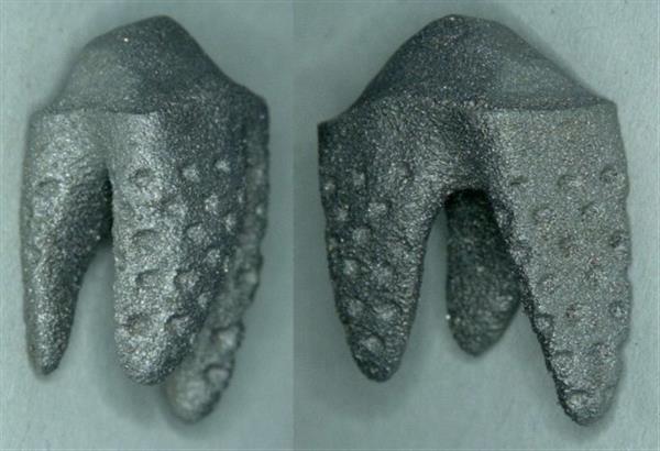 На IDS 2017 продемонстрировали модель зубного имплантата, напечатанного на 3D-принтере и полностью повторяющего естественную форму зуба