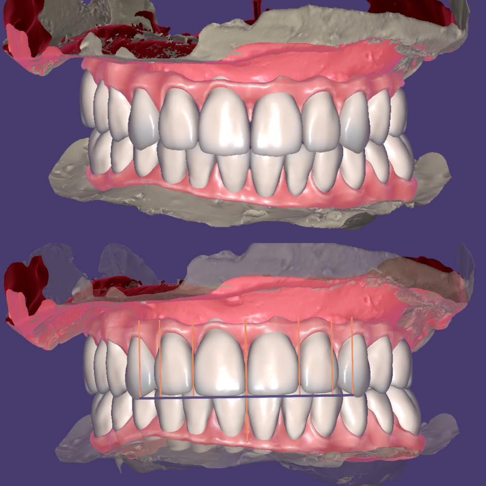 Картинка зубного ряда
