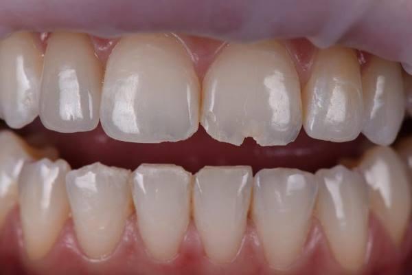 Композитная реставрация дефектов зубов, вызванных травмой
