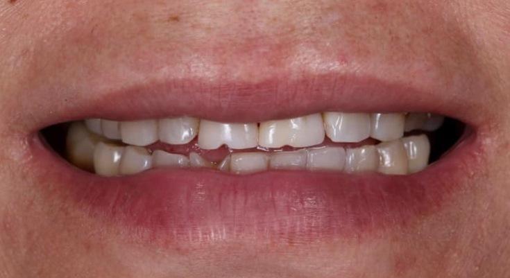 Комплексный минимально-инвазивный подход в восстановлении зубов