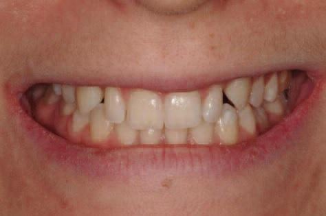 Биоэстетика: создаем новую улыбку