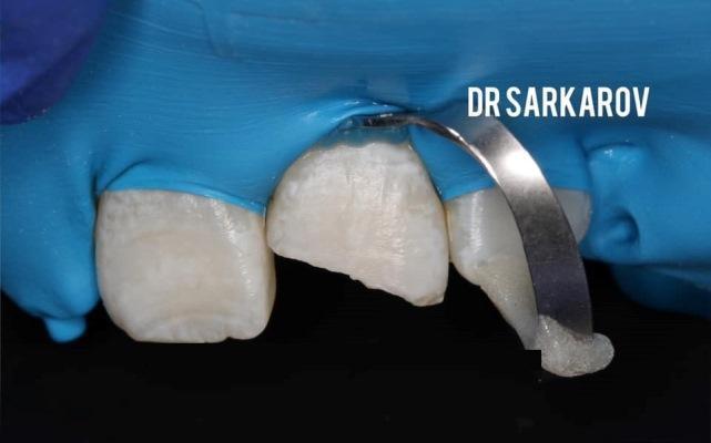 Неосложненный перелом 21 зуба