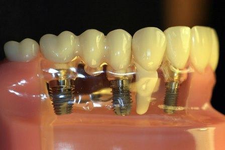 Ученые из Румынии разработали зубные имплантаты, позволяющие имитировать физиологическую подвижность естественного зуба