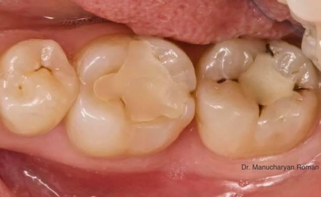 Прямая реставрация зубов 4.5, 4.6, 4.7
