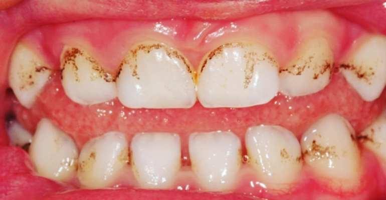 Темные пятна на эмали могут быть вызваны особым биологическим составом в ротовой полости, защищающим от кариеса