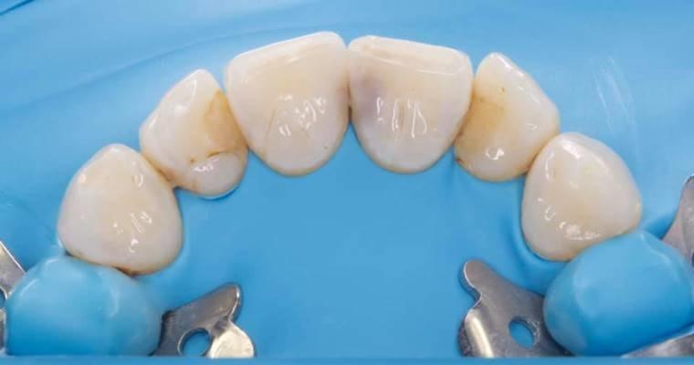 Прямая реставрация фронтальных зубов, контактные пункты (небный доступ)