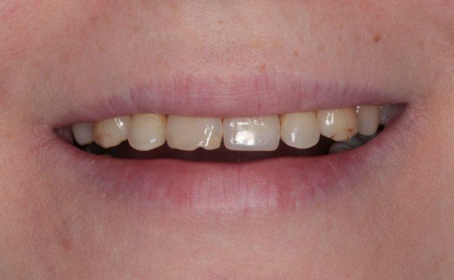 Коррекция линии улыбки после ортодонтического лечения